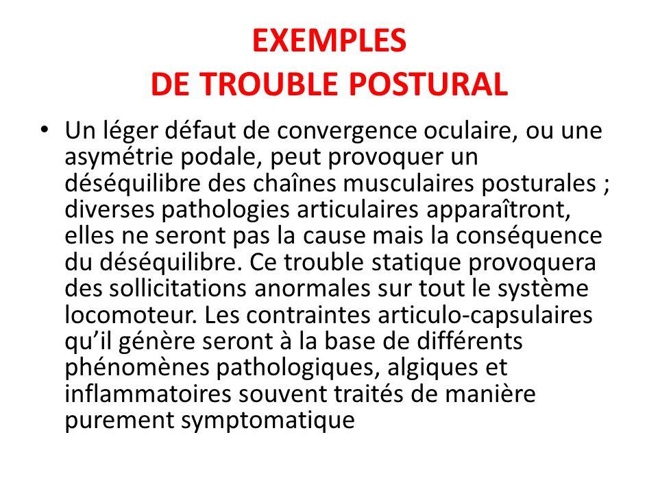 EXEMPLES DE TROUBLE POSTURAL Un léger défaut de convergence oculaire, ou une asymétrie podale, peut provoquer un déséquilibre des chaînes musculaires