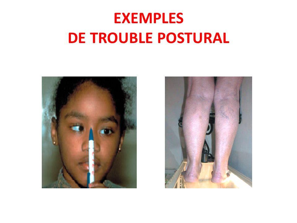 EXEMPLES DE TROUBLE POSTURAL