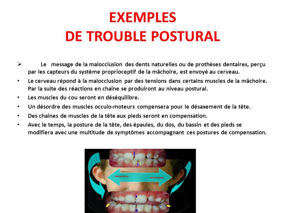 Le message de la malocclusion des dents naturelles ou de prothèses dentaires, perçu par les capteurs du système proprioceptif de la mâchoire, est envo