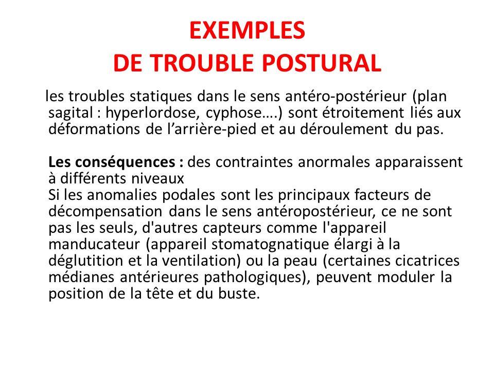EXEMPLES DE TROUBLE POSTURAL les troubles statiques dans le sens antéro-postérieur (plan sagital : hyperlordose, cyphose….) sont étroitement liés aux