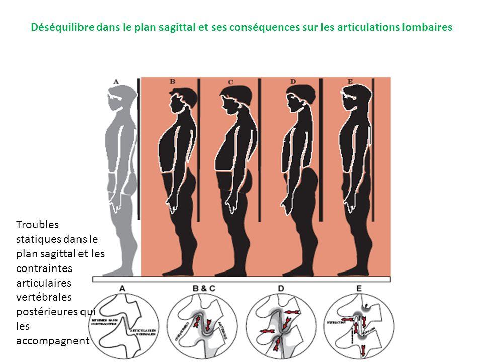 Déséquilibre dans le plan sagittal et ses conséquences sur les articulations lombaires Troubles statiques dans le plan sagittal et les contraintes art