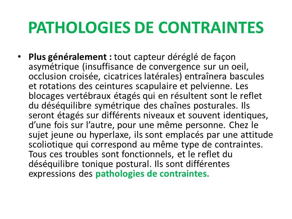 PATHOLOGIES DE CONTRAINTES Plus généralement : tout capteur déréglé de façon asymétrique (insuffisance de convergence sur un oeil, occlusion croisée,
