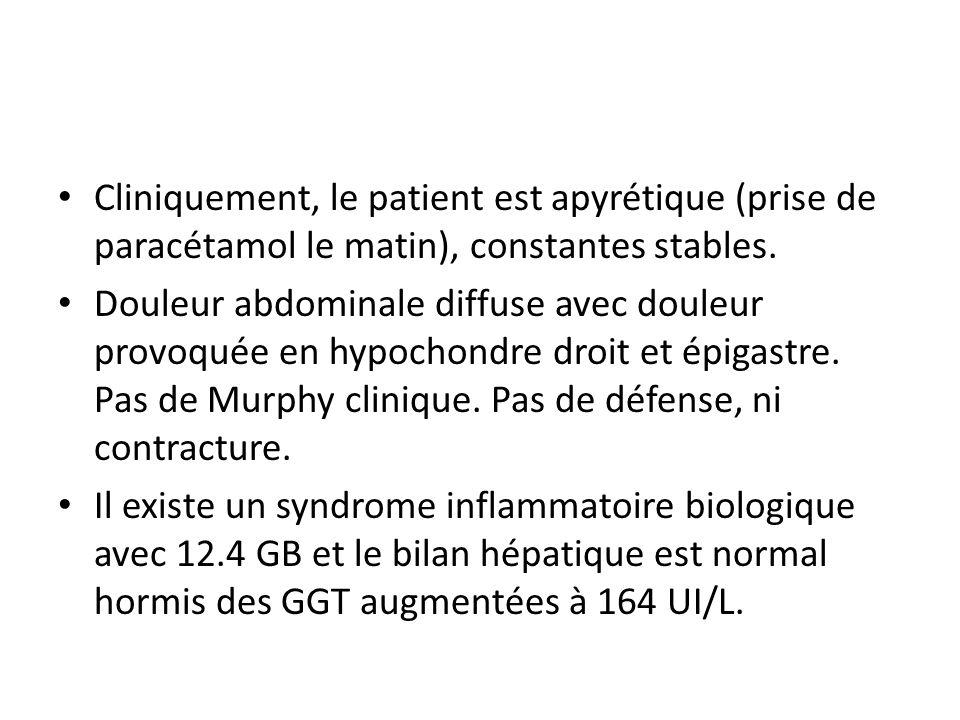 Cliniquement, le patient est apyrétique (prise de paracétamol le matin), constantes stables. Douleur abdominale diffuse avec douleur provoquée en hypo