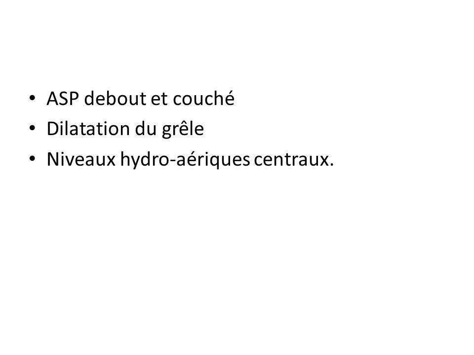 ASP debout et couché Dilatation du grêle Niveaux hydro-aériques centraux.
