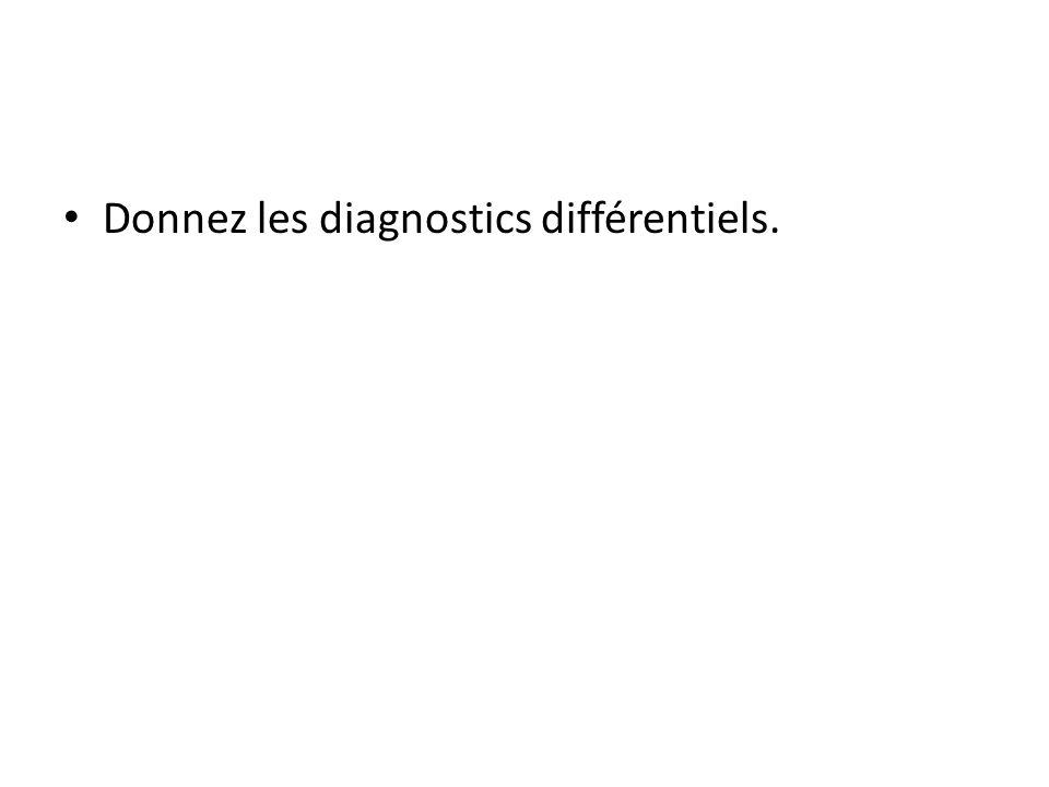 Donnez les diagnostics différentiels.