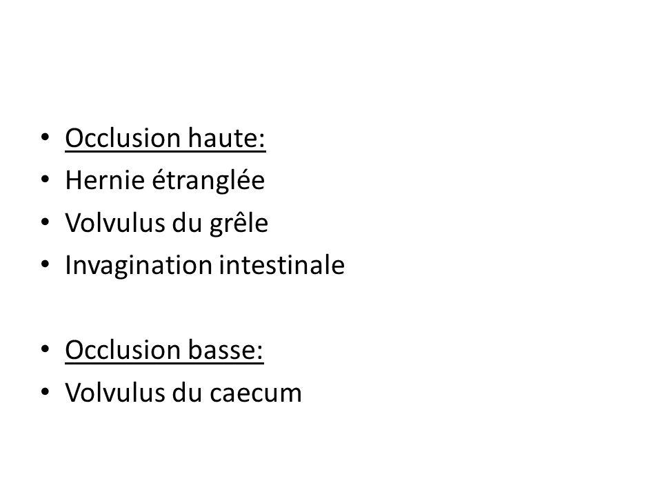 Occlusion haute: Hernie étranglée Volvulus du grêle Invagination intestinale Occlusion basse: Volvulus du caecum