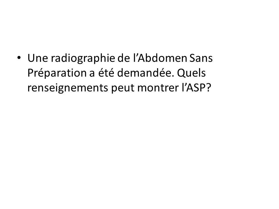 Une radiographie de lAbdomen Sans Préparation a été demandée. Quels renseignements peut montrer lASP?