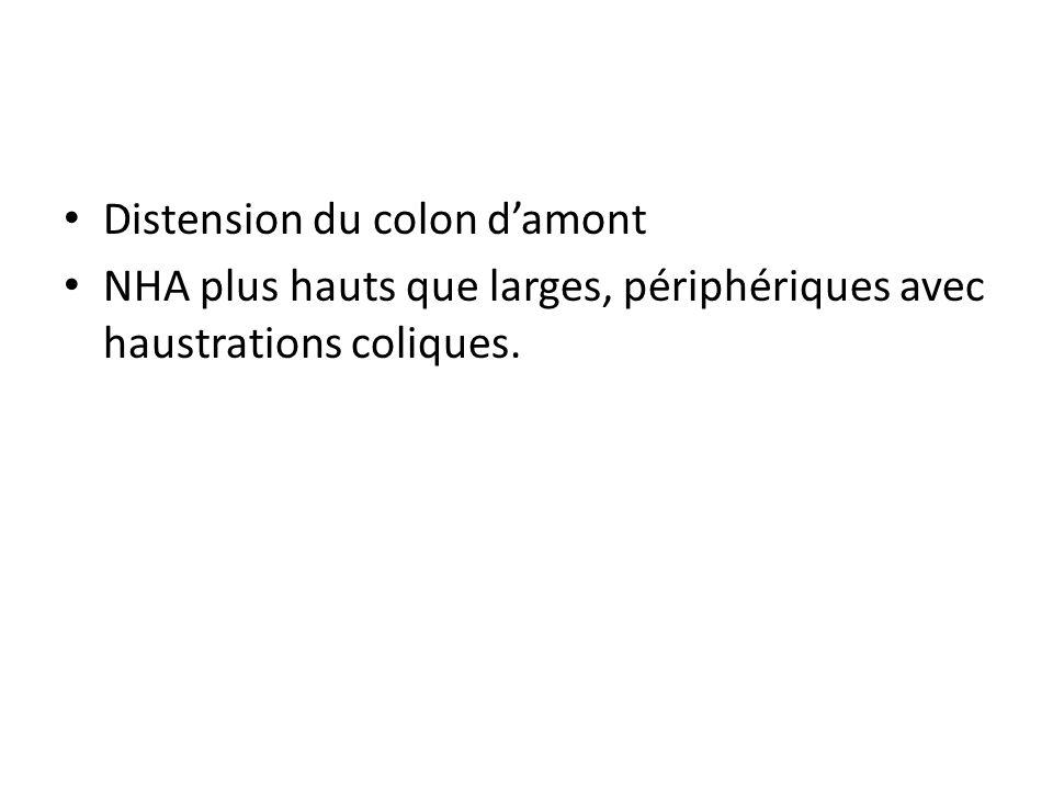 Distension du colon damont NHA plus hauts que larges, périphériques avec haustrations coliques.