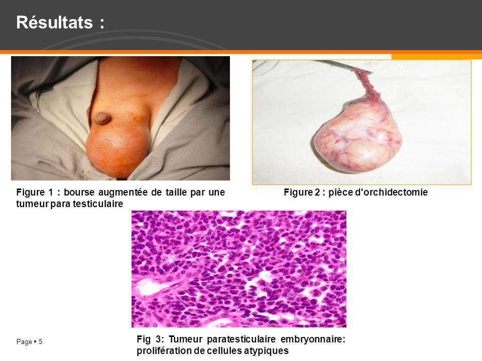 Page 5 Résultats : Figure 1 : bourse augmentée de taille par une tumeur para testiculaire Figure 2 : pièce d'orchidectomie Fig 3: Tumeur paratesticula