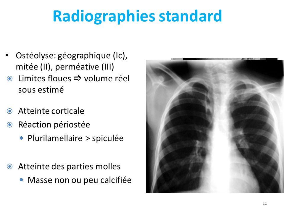 Radiographies standard Ostéolyse: géographique (Ic), mitée (II), perméative (III) 11 Atteinte corticale Réaction périostée Plurilamellaire > spiculée