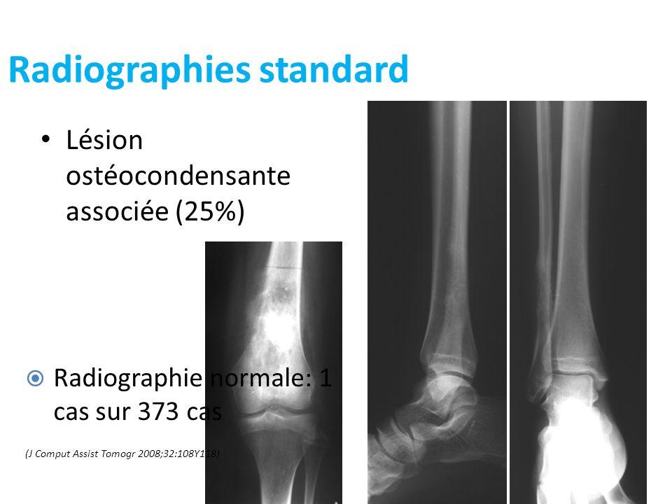 Radiographies standard Lésion ostéocondensante associée (25%) 12 Radiographie normale: 1 cas sur 373 cas (J Comput Assist Tomogr 2008;32:108Y118)