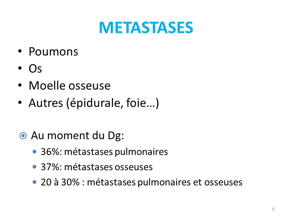 METASTASES 6 Poumons Os Moelle osseuse Autres (épidurale, foie…) Au moment du Dg: 36%: métastases pulmonaires 37%: métastases osseuses 20 à 30% : méta