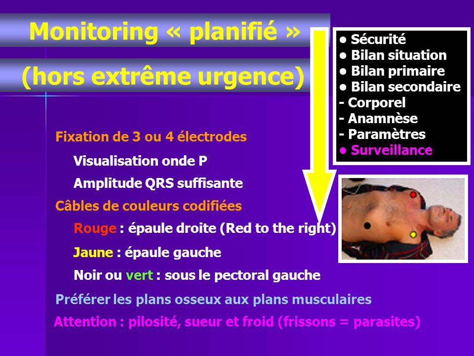 Monitoring « planifié » (hors extrême urgence) Sécurité Bilan situation Bilan primaire Bilan secondaire - Corporel - Anamnèse - Paramètres Surveillanc