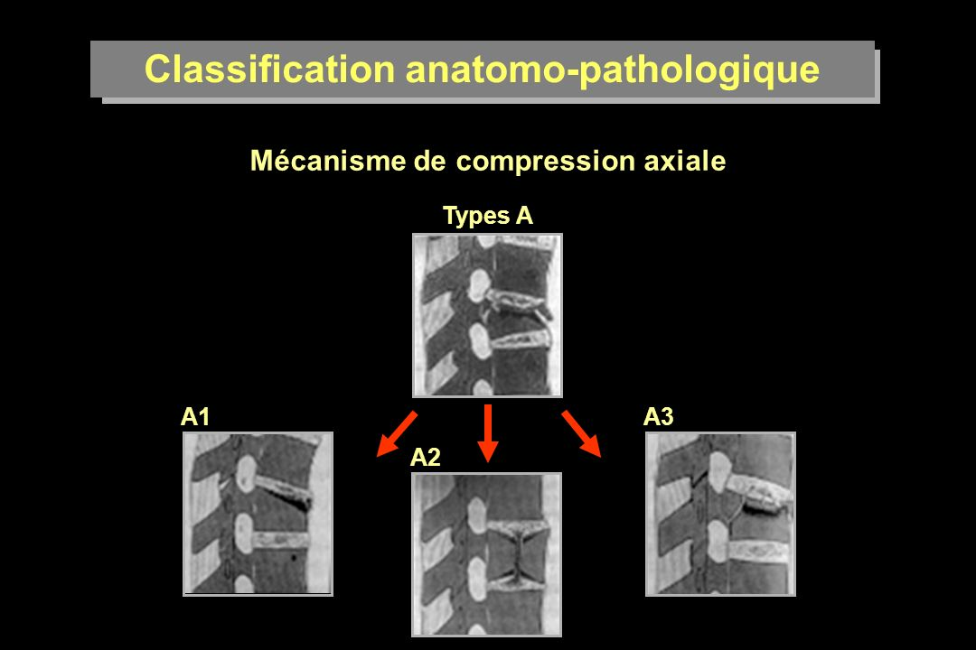 Classification anatomo-pathologique Mécanisme de compression axiale Types A A1 A2 A3