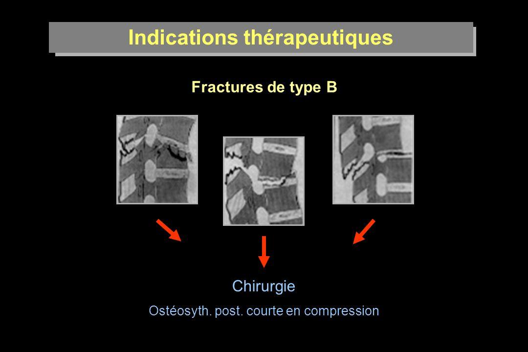 Indications thérapeutiques Fractures de type B Chirurgie Ostéosyth. post. courte en compression