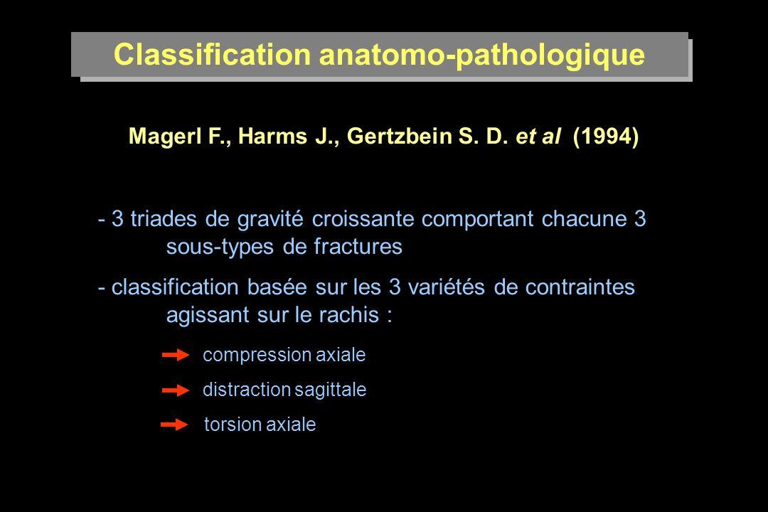 Classification anatomo-pathologique Mécanisme de compression axiale Types A - les plus fréquentes : 70 % - affectent la colonne antérieure disco-corporéale - absence de distraction - tassement > 50 % atteinte des colonnes moyennes et postérieures
