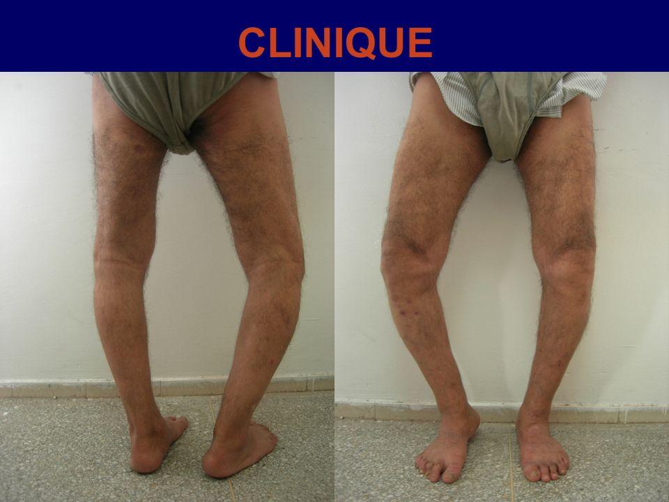BILAN RADIOLOGIQUE -Clichés standards de genou : face + profil.