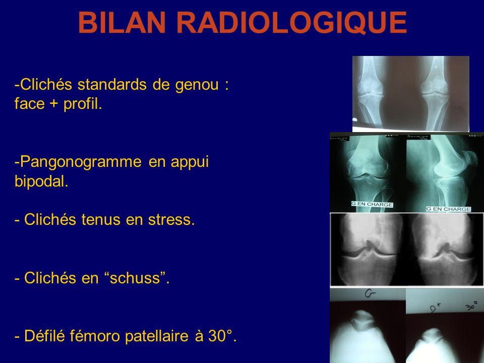 BILAN RADIOLOGIQUE -Clichés standards de genou : face + profil. -Pangonogramme en appui bipodal. - Clichés tenus en stress. - Clichés en schuss. - Déf