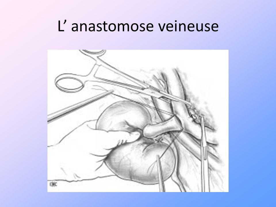 L anastomose veineuse