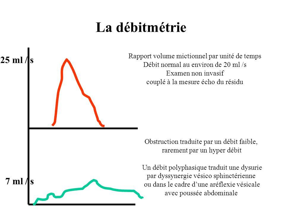 La débitmétrie 25 ml / s 7 ml / s Rapport volume mictionnel par unité de temps Débit normal au environ de 20 ml /s Examen non invasif couplé à la mesu
