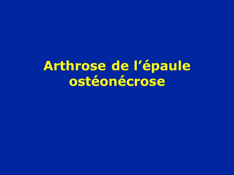 Arthrose de lépaule ostéonécrose