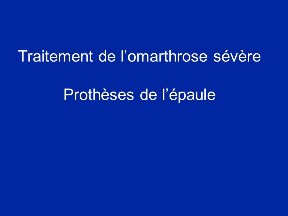 Traitement de lomarthrose sévère Prothèses de lépaule