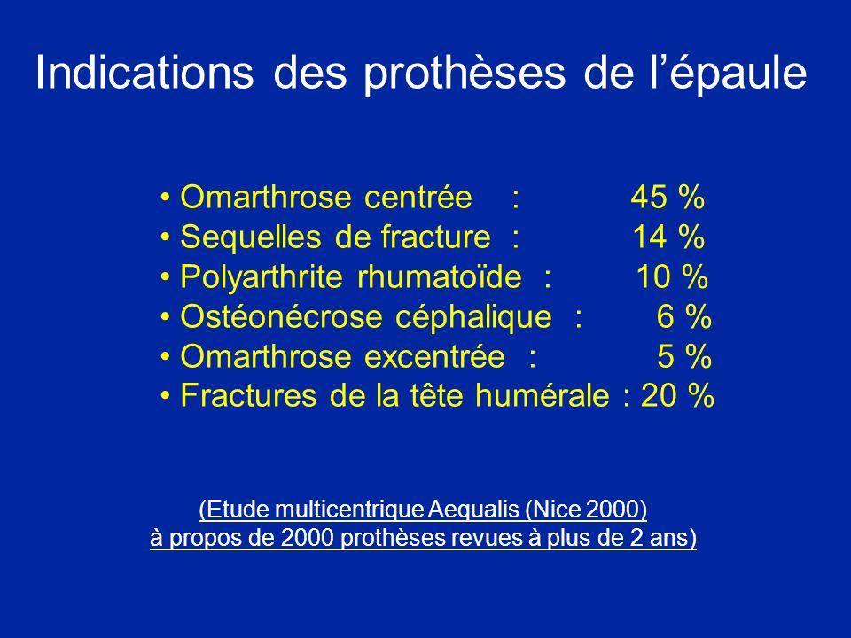 Indications des prothèses de lépaule Omarthrose centrée : 45 % Sequelles de fracture : 14 % Polyarthrite rhumatoïde : 10 % Ostéonécrose céphalique : 6 % Omarthrose excentrée : 5 % Fractures de la tête humérale : 20 % (Etude multicentrique Aequalis (Nice 2000) à propos de 2000 prothèses revues à plus de 2 ans)