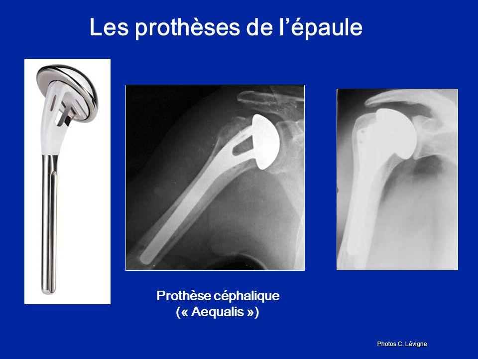 Prothèse céphalique (« Aequalis ») Photos C. Lévigne