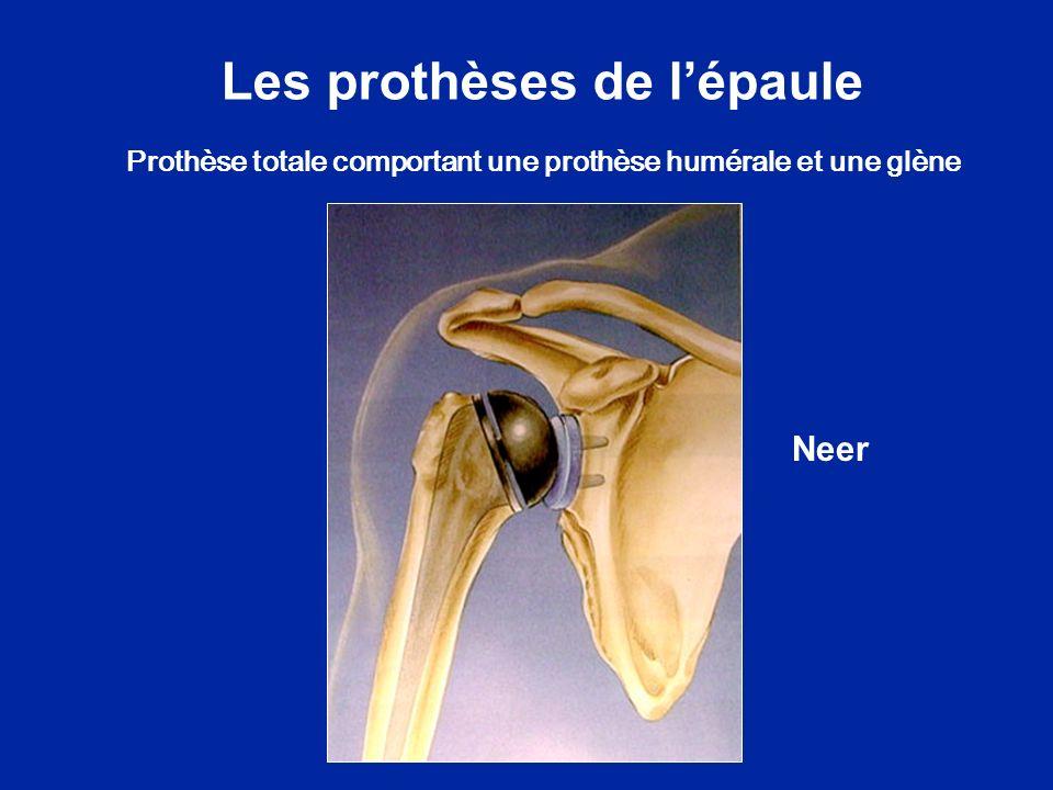Les prothèses de lépaule Neer Prothèse totale comportant une prothèse humérale et une glène
