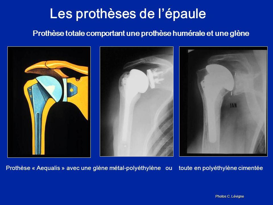 Les prothèses de lépaule Prothèse totale comportant une prothèse humérale et une glène Prothèse « Aequalis » avec une glène métal-polyéthylène ou toute en polyéthylène cimentée Photos C.