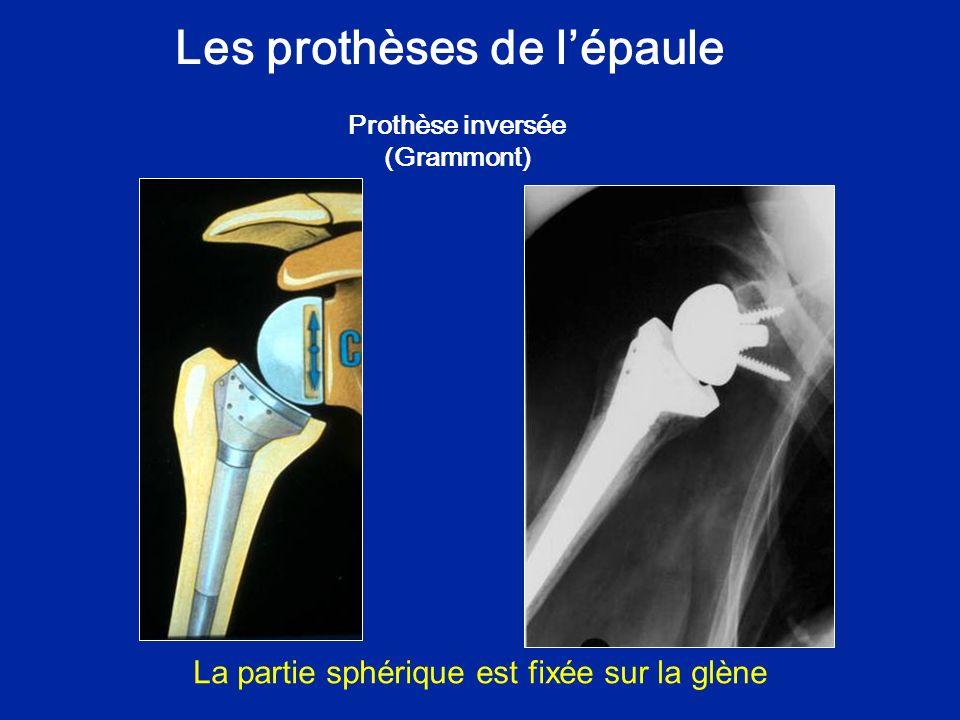 Les prothèses de lépaule Prothèse inversée (Grammont) La partie sphérique est fixée sur la glène