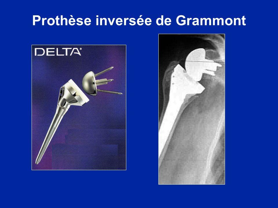 Prothèse inversée de Grammont