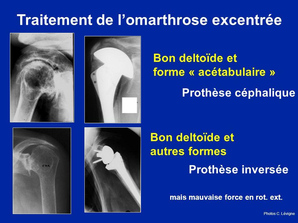 Traitement de lomarthrose excentrée Bon deltoïde et forme « acétabulaire » Prothèse céphalique Bon deltoïde et autres formes Prothèse inversée mais mauvaise force en rot.