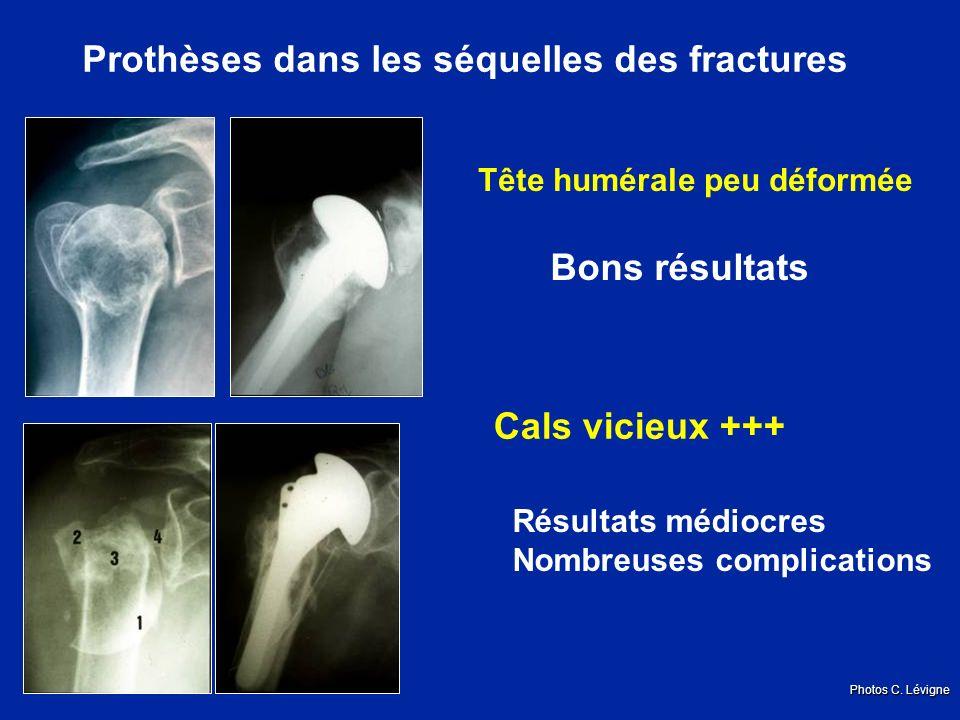 Prothèses dans les séquelles des fractures Tête humérale peu déformée Bons résultats Cals vicieux +++ Résultats médiocres Nombreuses complications Photos C.