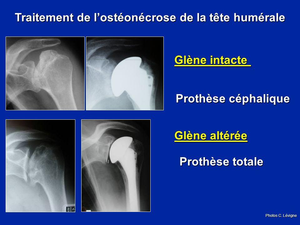 Traitement de lostéonécrose de la tête humérale Glène intacte Prothèse céphalique Glène altérée Prothèse totale Photos C.