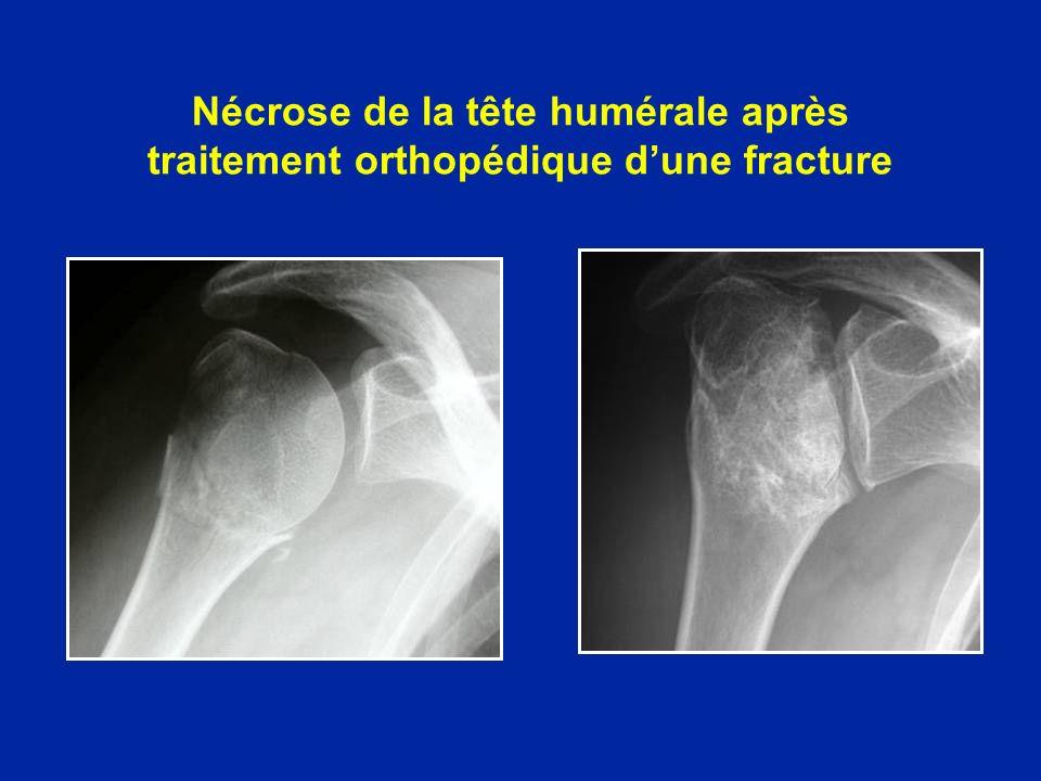 Nécrose de la tête humérale après traitement orthopédique dune fracture