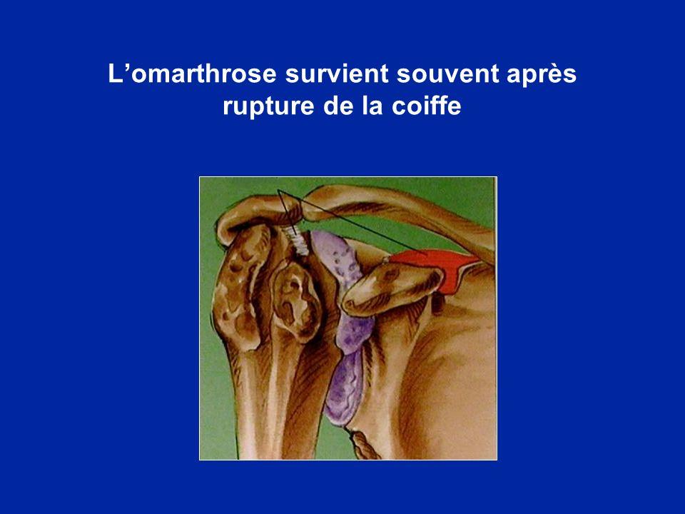 Lomarthrose survient souvent après rupture de la coiffe