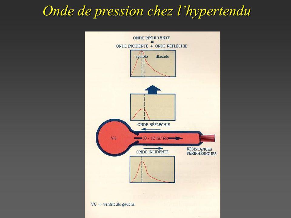 Onde de pression chez lhypertendu