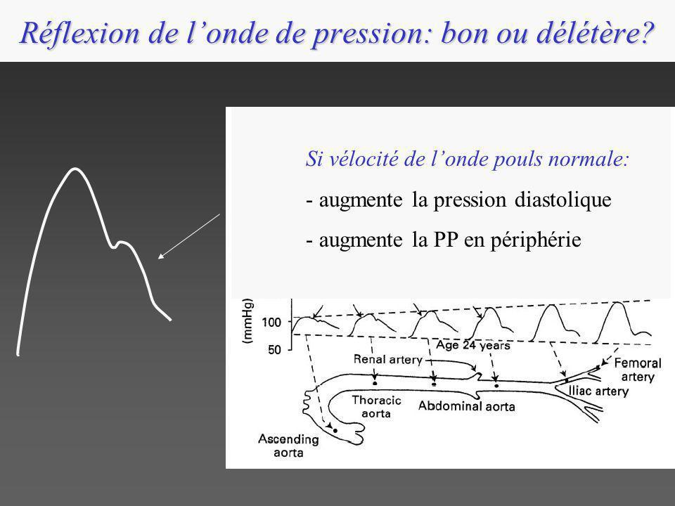 Réflexion de londe de pression: bon ou délétère? Si vélocité de londe pouls normale: - augmente la pression diastolique - augmente la PP en périphérie