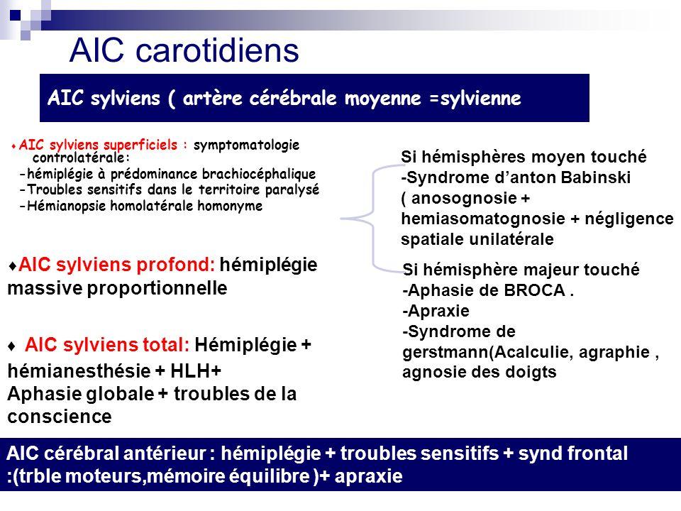 AIC sylviens ( artère cérébrale moyenne =sylvienne AIC sylviens superficiels : symptomatologie controlatérale: -hémiplégie à prédominance brachiocéphalique -Troubles sensitifs dans le territoire paralysé -Hémianopsie homolatérale homonyme Si hémisphère majeur touché -Aphasie de BROCA.