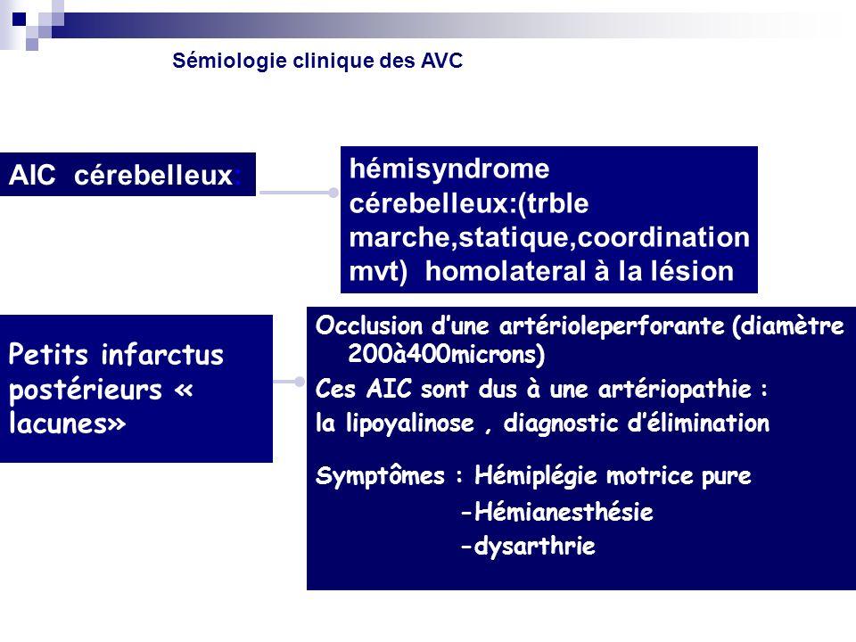 Petits infarctus postérieurs « lacunes» Occlusion dune artérioleperforante (diamètre 200à400microns) Ces AIC sont dus à une artériopathie : la lipoyalinose, diagnostic délimination Symptômes : Hémiplégie motrice pure -Hémianesthésie -dysarthrie hémisyndrome cérebelleux:(trble marche,statique,coordination mvt) homolateral à la lésion AIC cérebelleux: Sémiologie clinique des AVC