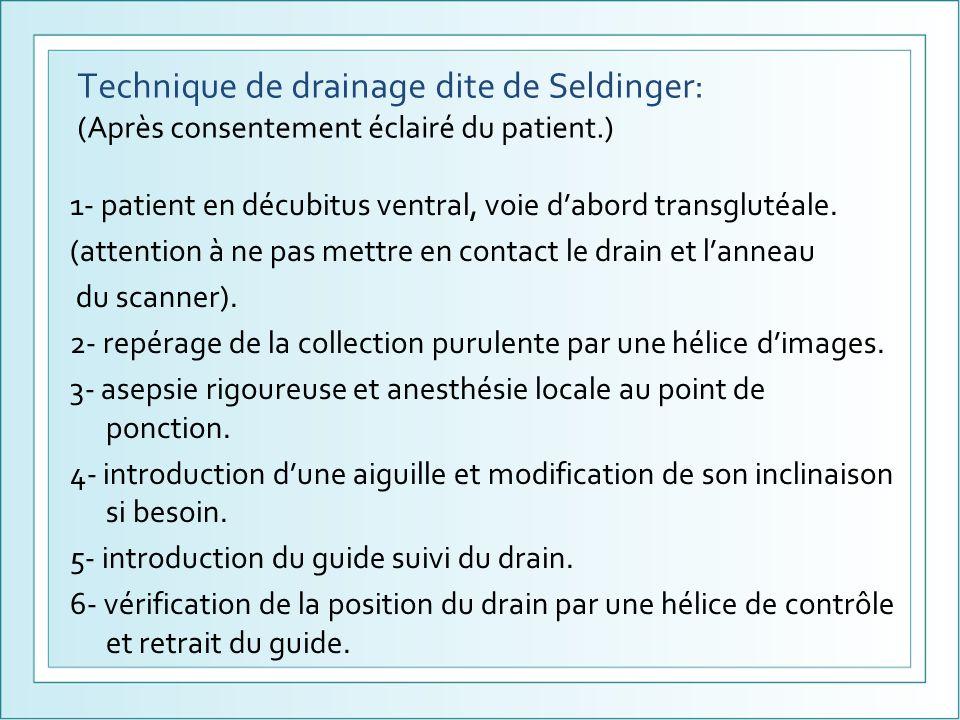 Technique de drainage dite de Seldinger: (Après consentement éclairé du patient.) 1- patient en décubitus ventral, voie dabord transglutéale. (attenti