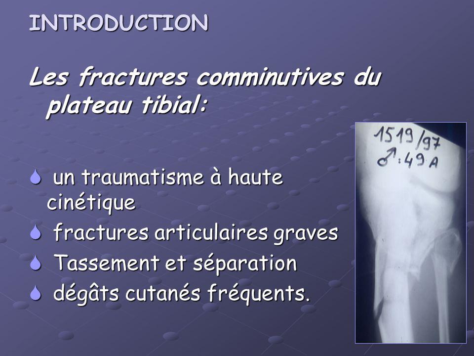INTRODUCTION Les fractures comminutives du plateau tibial: un traumatisme à haute cinétique un traumatisme à haute cinétique fractures articulaires gr