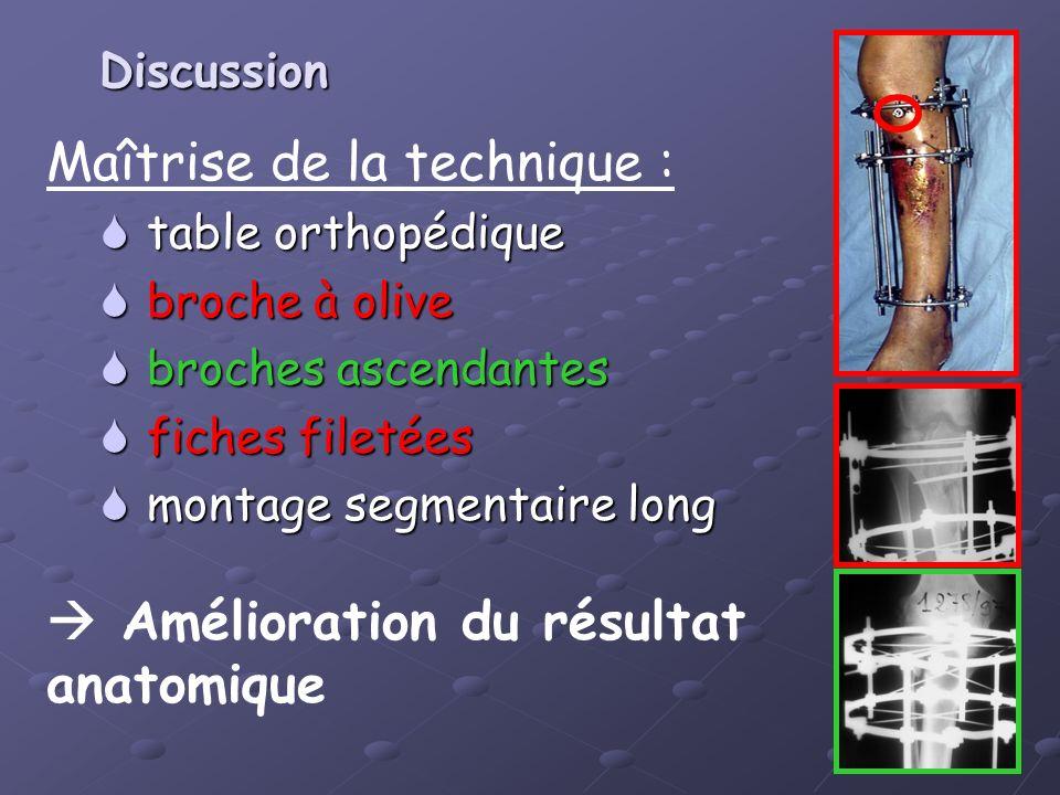 Maîtrise de la technique : table orthopédique table orthopédique broche à olive broche à olive broches ascendantes broches ascendantes fiches filetées