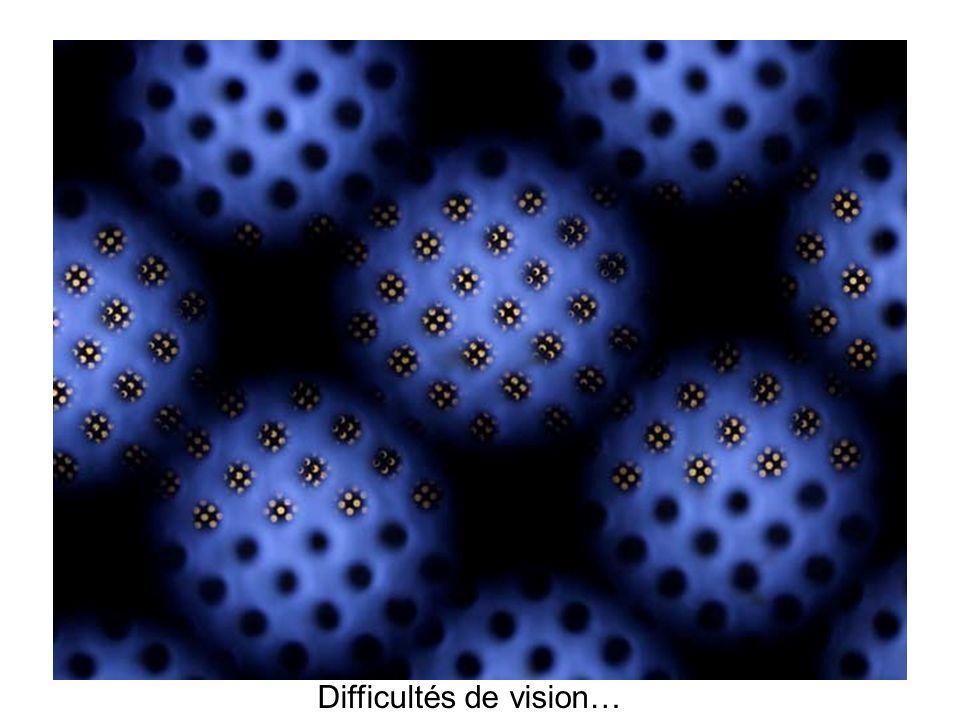 Difficultés de vision…