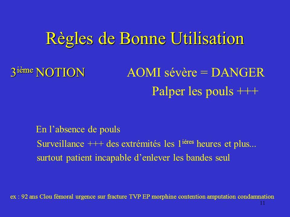 11 Règles de Bonne Utilisation 3 ième NOTION 3 ième NOTION AOMI sévère = DANGER Palper les pouls +++ En labsence de pouls Surveillance +++ des extrémi