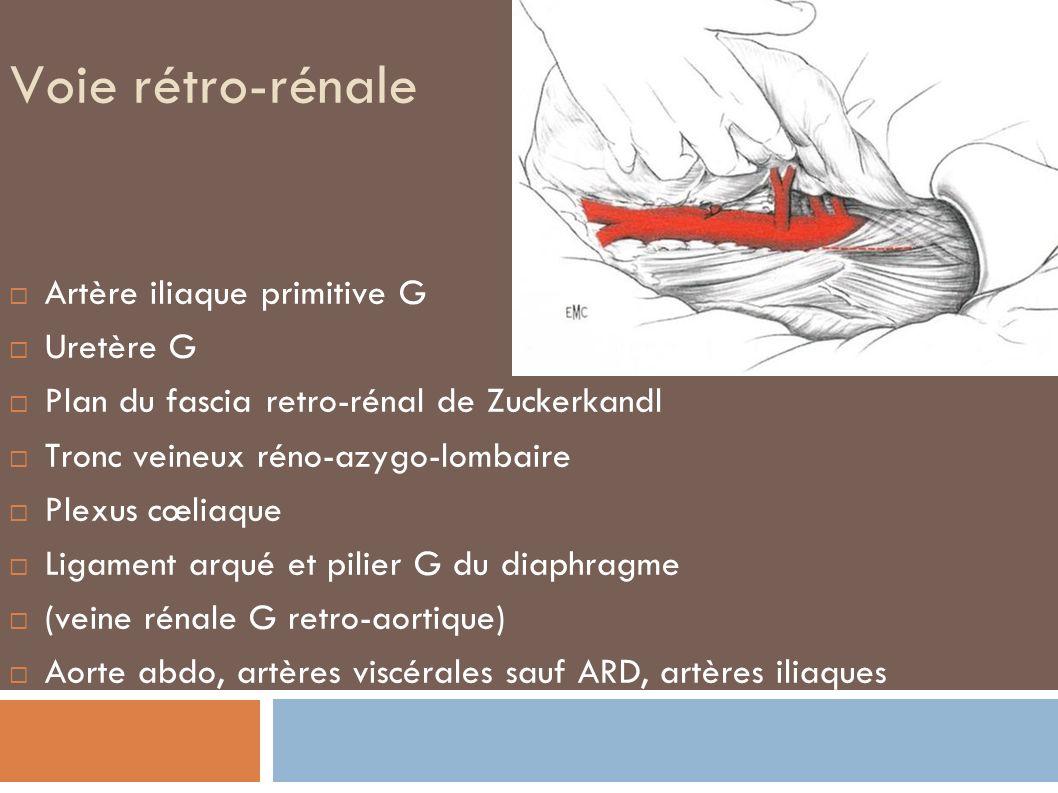 Voie rétro-rénale Artère iliaque primitive G Uretère G Plan du fascia retro-rénal de Zuckerkandl Tronc veineux réno-azygo-lombaire Plexus cœliaque Ligament arqué et pilier G du diaphragme (veine rénale G retro-aortique) Aorte abdo, artères viscérales sauf ARD, artères iliaques
