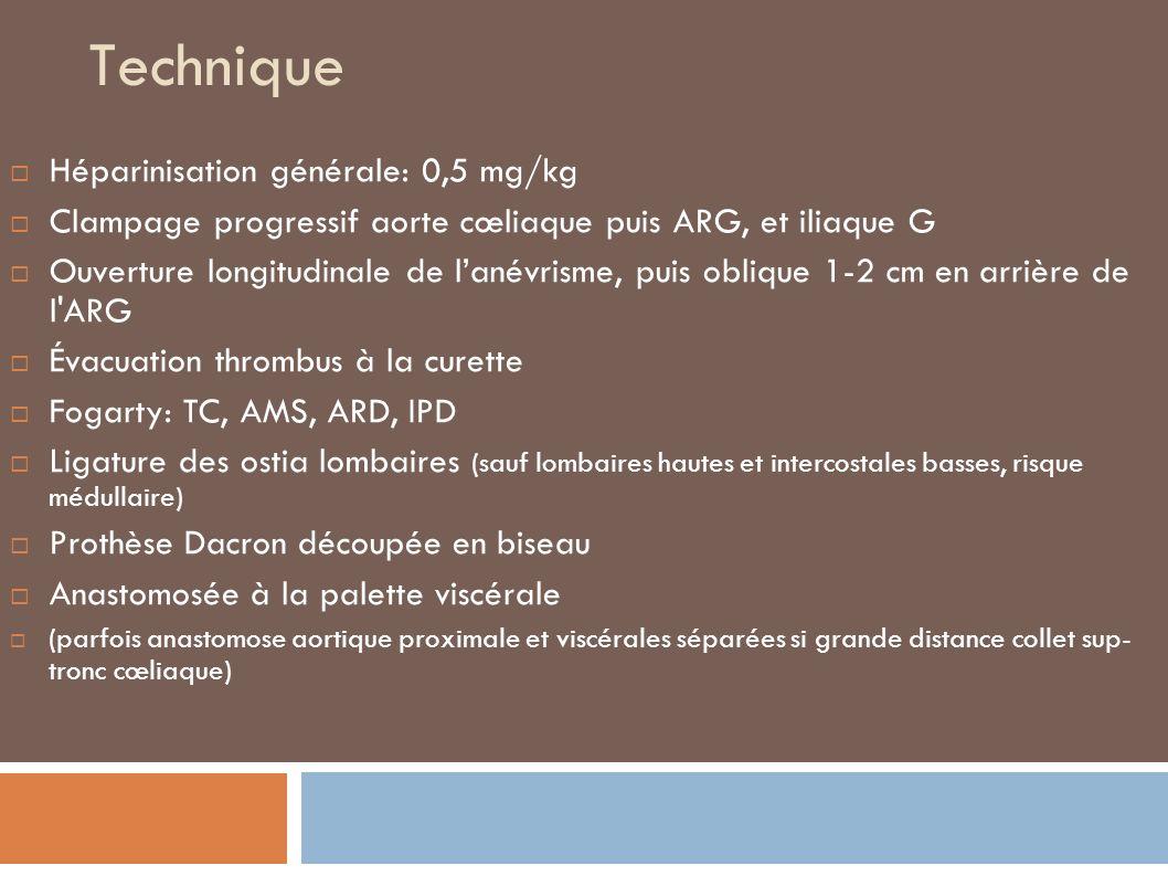 Technique Héparinisation générale: 0,5 mg/kg Clampage progressif aorte cœliaque puis ARG, et iliaque G Ouverture longitudinale de lanévrisme, puis oblique 1-2 cm en arrière de l ARG Évacuation thrombus à la curette Fogarty: TC, AMS, ARD, IPD Ligature des ostia lombaires (sauf lombaires hautes et intercostales basses, risque médullaire) Prothèse Dacron découpée en biseau Anastomosée à la palette viscérale (parfois anastomose aortique proximale et viscérales séparées si grande distance collet sup- tronc cœliaque)