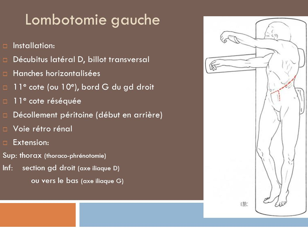 Thoraco-phréno-lombotomie Décubitus latéral Lombotomie sur la 10e cote Ou espace supérieur Phrénotomie périphérique ou radiaire