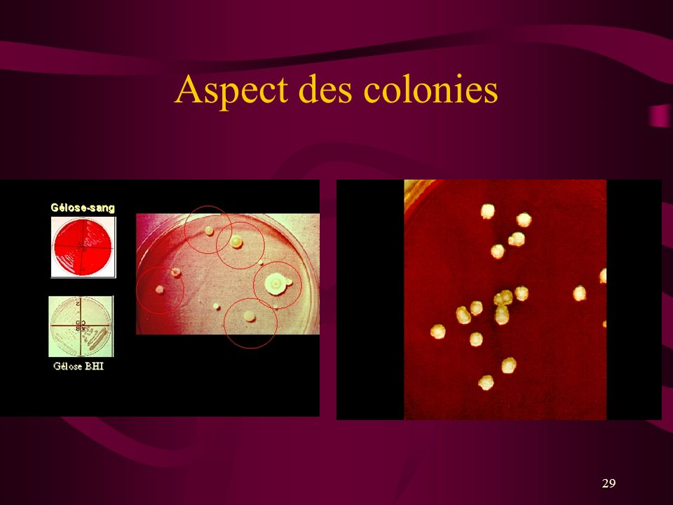 29 Aspect des colonies
